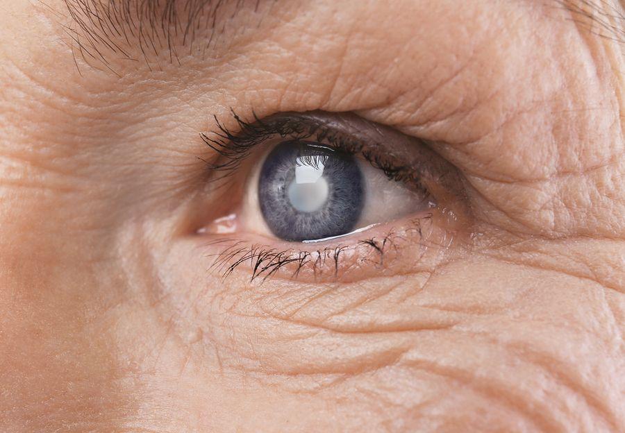 Diabetic Retinopathy Effects of Eyesight